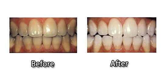 Dental Implants Beverly Hills