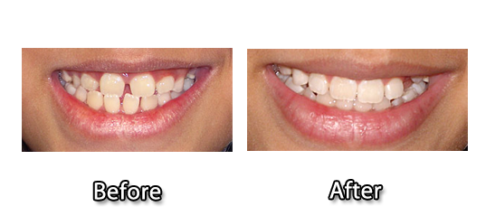 Dental Bone Grafting Los Angeles